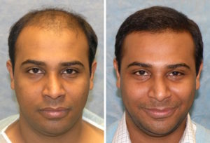 Before and After Hair Transplant-Surgery